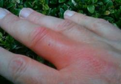 Wat helpt het beste tegen wespensteken?